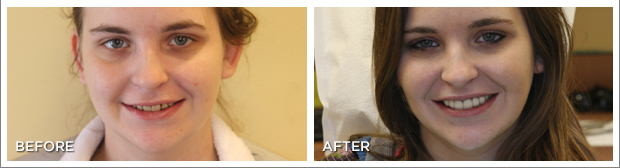 beforeafternew6